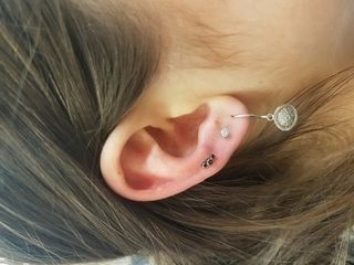 16gauge upper lobe
